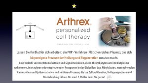 Arthrex cell therapy