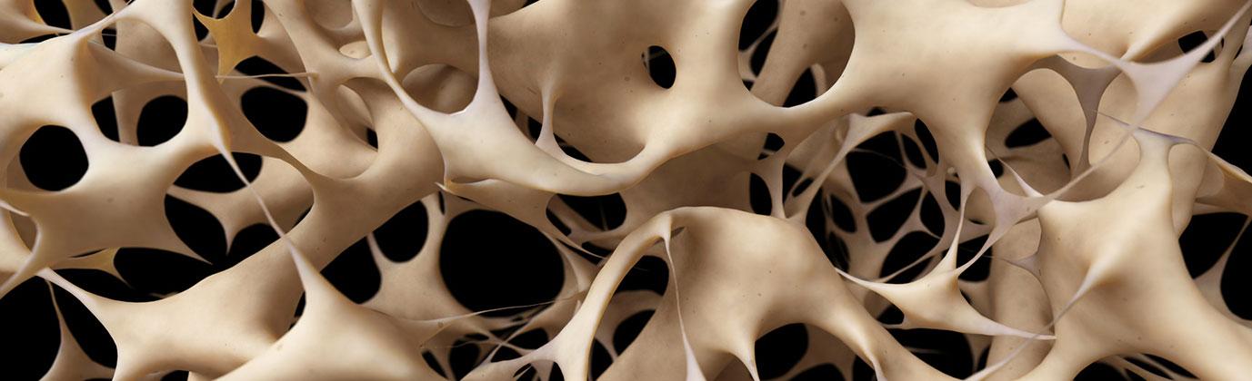 Schwerpunkt Osteoporose