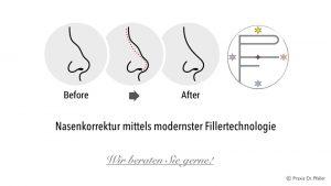 Nasenkorrektur mittels modernster Fillertechnologie: eine echte! Alternative zur Operation!