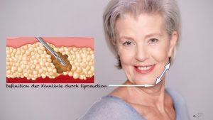 Dr. Pfaller - Liposuction