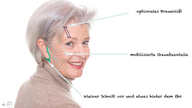 Minilift (MACS-Facelift = Minimal Access Cranial Suspension)