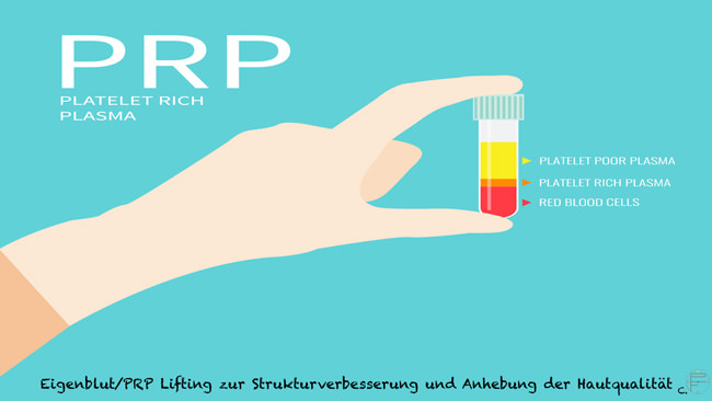 PRP - Platelet Rich Plasma