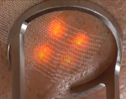 Fraktionales Lasern