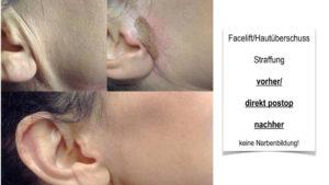 Facelift mittels Plasmatherapie