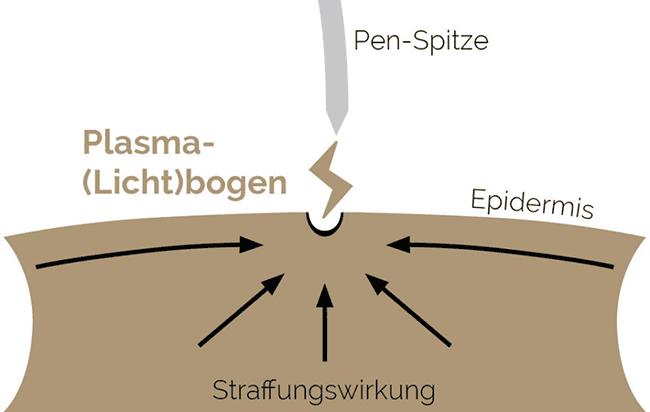 Prinzip Plasmachirurgie