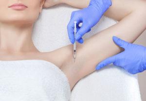Punktuell eingebrachtes Botulinumtoxin verengt die Schweißdrüsen langfristig.