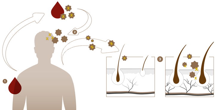 Eigenblutplasma-Therapie bei Haarausfall