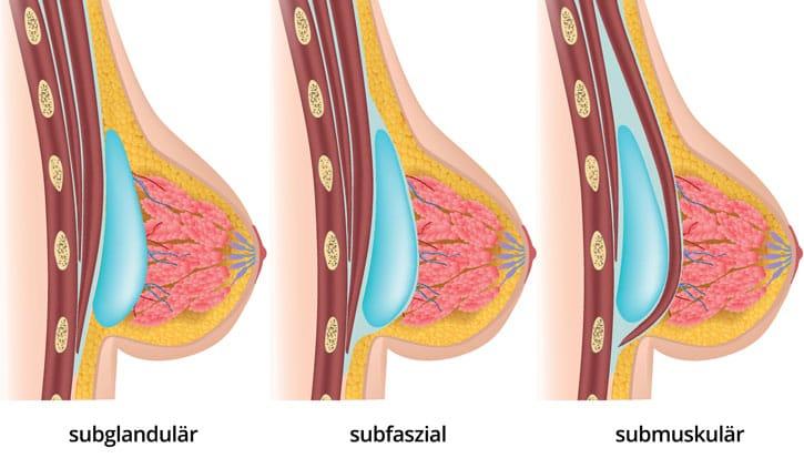 Brustvergrößerung mit Los Deline/Aquafilling